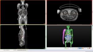 Immagine TC con render 3D