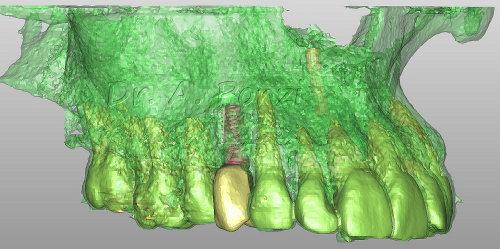 Implantologia guidata