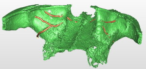 Arterie circonflesse nella parete del seno mascellare.