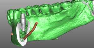 Implantologia guidata - Progettazione