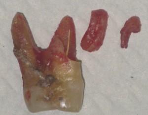 Il dente estratto