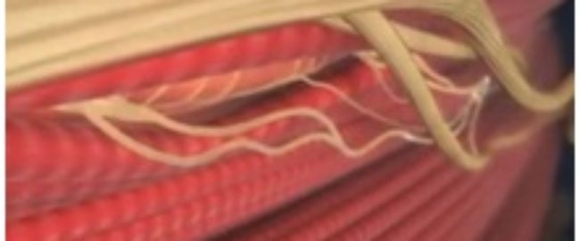 Un muscolo e i suoi nervi