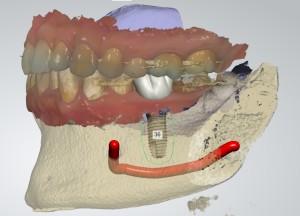 Implant Studio Project